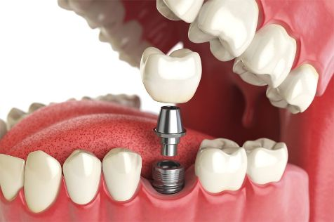 dental implant procedure in Denton